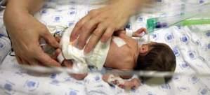 Bebés prematuros - El reto de nacer antes de tiempo